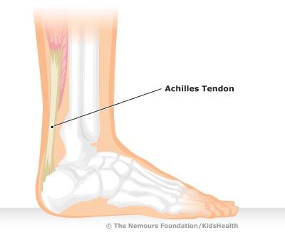 Achilles clipart achilles heel Children's Tendonitis Akron KidsHealth Hospital