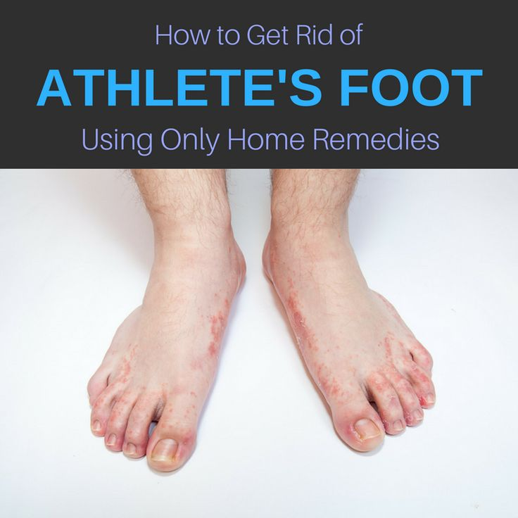 Barefoot clipart athlete's foot #4