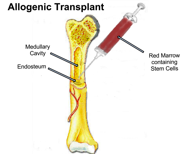 Blood clipart bone marrow Bone Marrow Marrow Transplant Transplant
