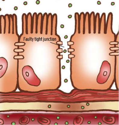 Blood clipart gut Leaky Gottfried Your junction Doctor