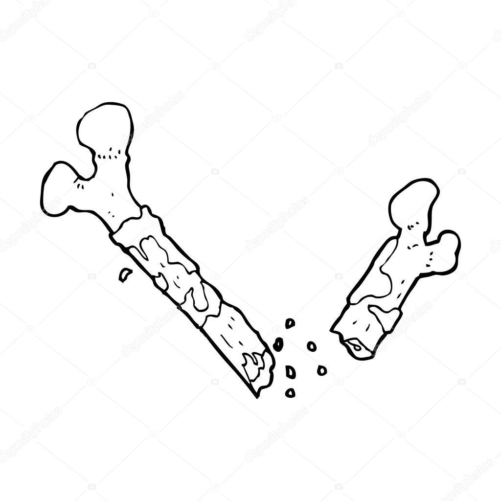 Bones clipart broke Cartoon Broken Bone