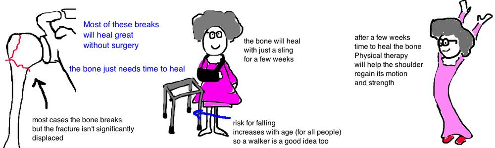 Bones clipart humerous Broken with weeks you Talks