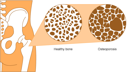 Bones clipart osteoporosis Aihw  is Than png?n=8997