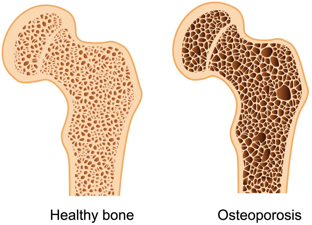 Bones clipart osteoporosis по Density Bone Bone HealthDarts