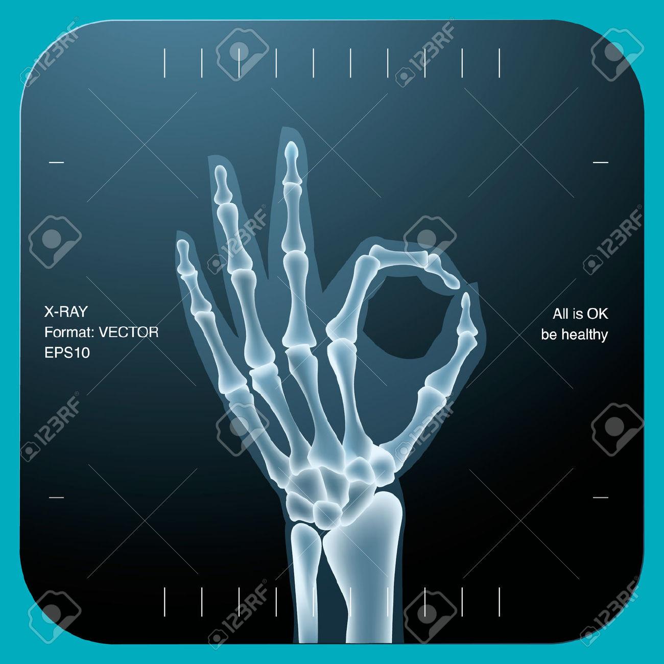Bones clipart radiology Ray X X clipart ray