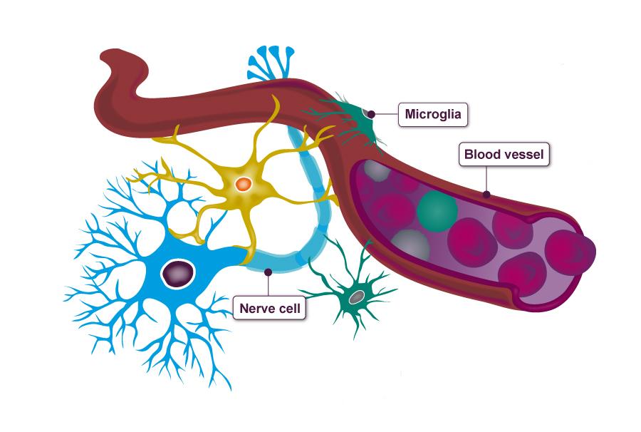 Brains clipart alzheimer's #9