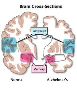 Brains clipart alzheimer's #8