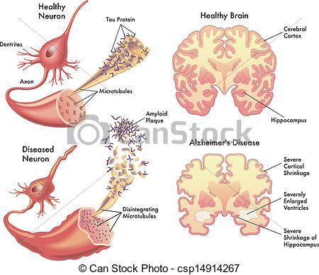 Brains clipart alzheimer's #1