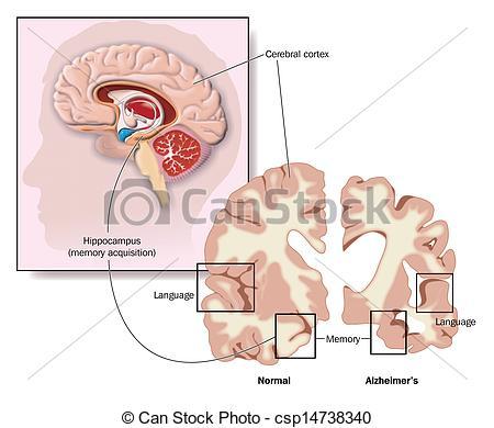 Brains clipart alzheimer's #2
