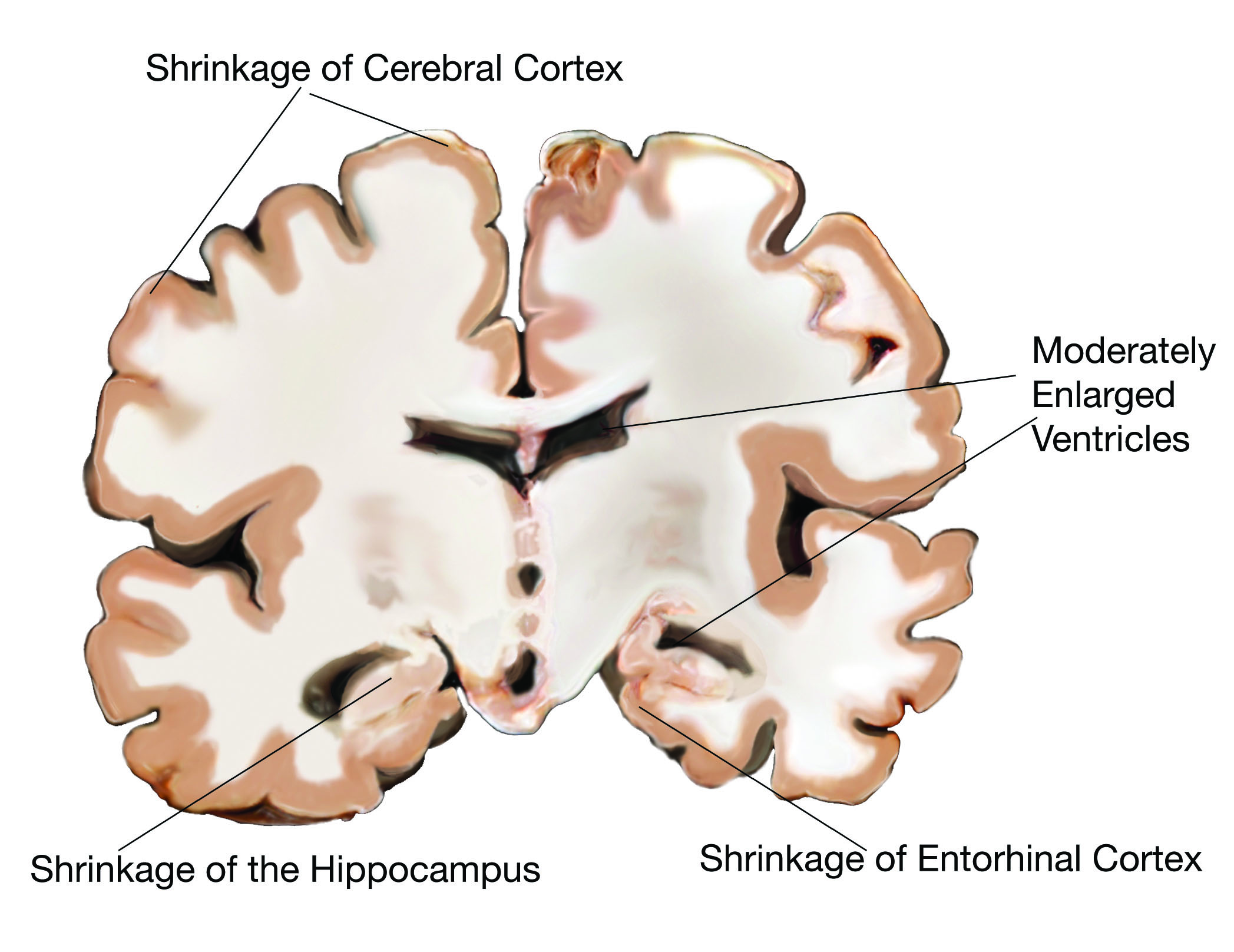 Brains clipart alzheimer's AD the the is the