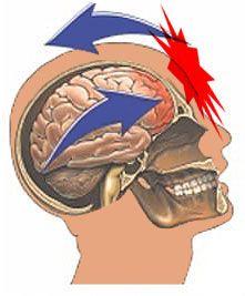 Brains clipart concussion TBI Concussion TOPICS: 248