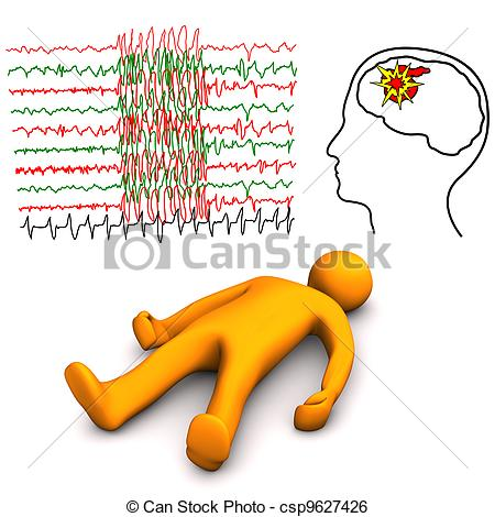 Brains clipart epilepsy And Page Seizures Download –