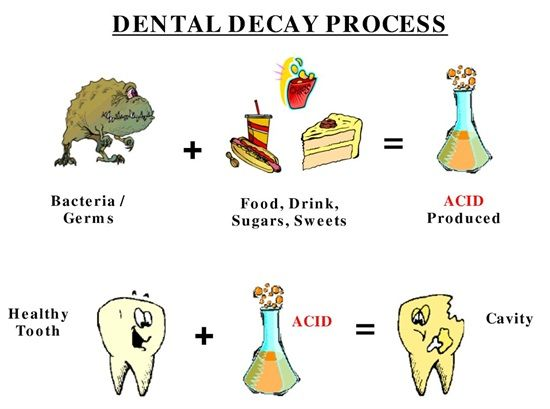 Decay clipart contaminated food Pinterest Decay 25+ Decay? tooth