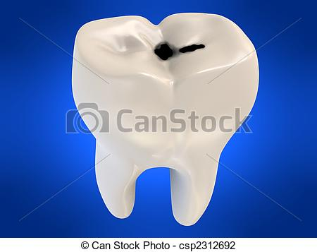Decay clipart decayed tooth Decay human Caries 644 illustration
