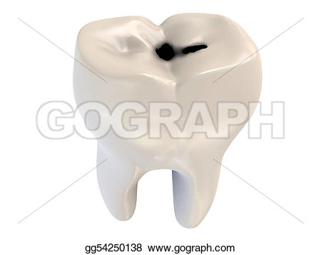 Decay clipart decayed tooth Illustration caries decay tooth human