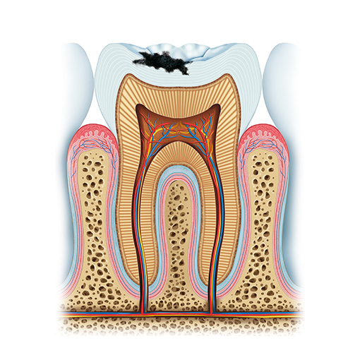 Decay clipart decayed tooth Treatment Tooth Temple City: fillings