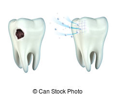 Decay clipart decayed tooth Tooth Stock  illustrations tooth