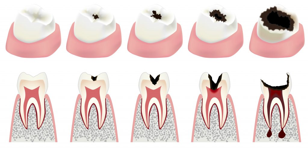 Decay clipart dental care Tooth Rock Risk At Are