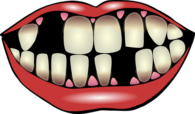 Decay clipart healthy tooth Understanding  Clipart gum Healthy