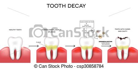 Decay clipart healthy tooth Of  formation decay csp30858784
