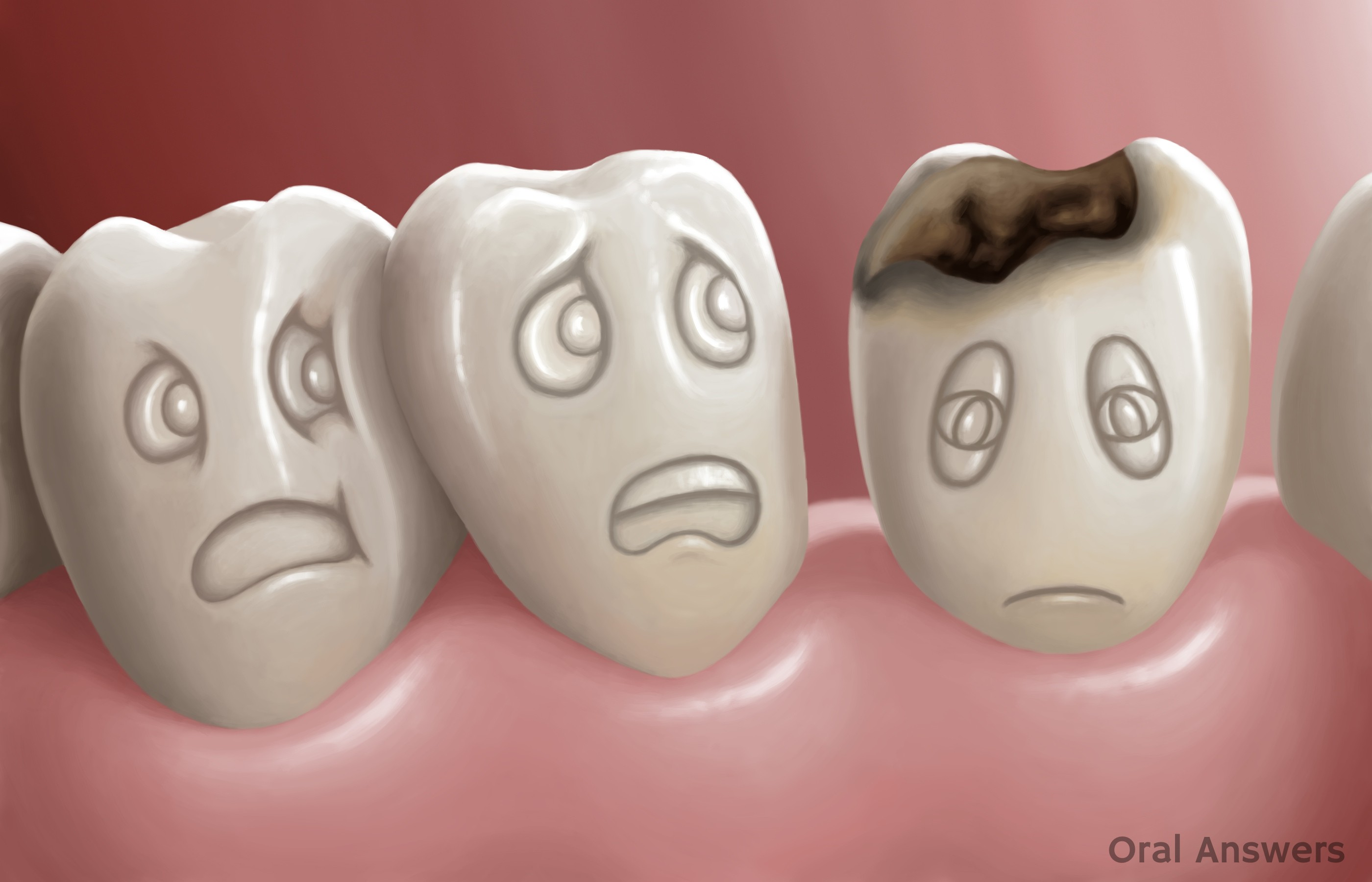 Decay clipart kid tooth Tooth Answers Draper 4 Oral