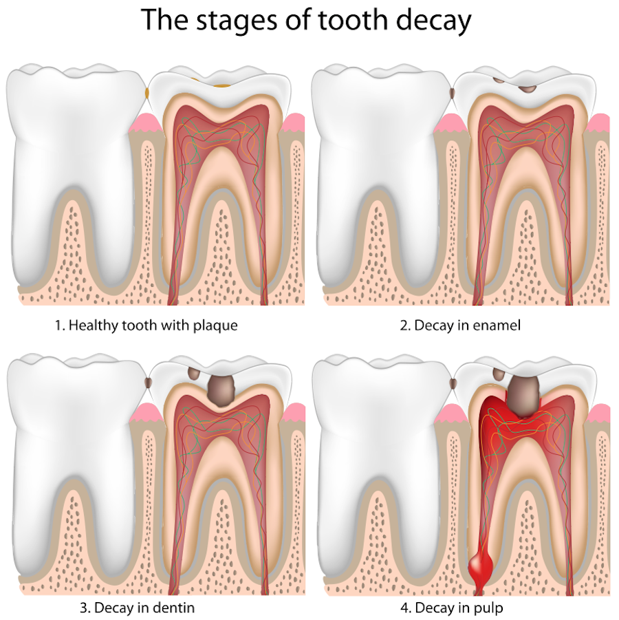Decay clipart kid tooth Dental Children Cavities Smiles in