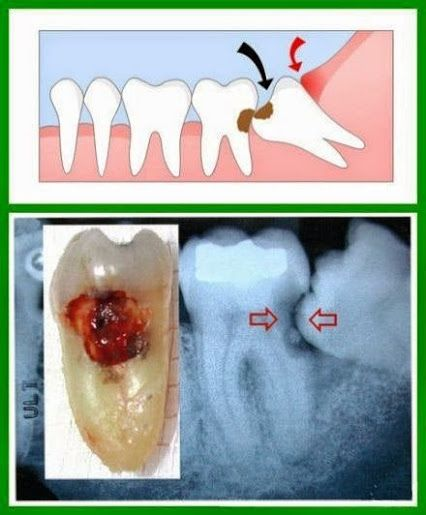 Decay clipart teeth cleaning Teeth images Teeth impacted cannot