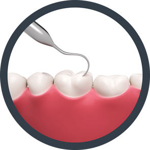 Decay clipart teeth cleaning It's Teeth decay Dental Cleanings