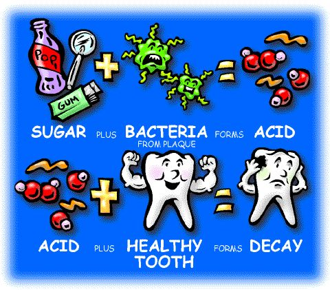 Teeth clipart decayed tooth Ideas process in decay First