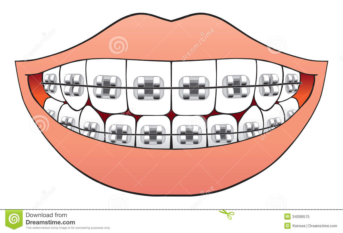 Drawn smile silly Clip 101 11 Braces Art