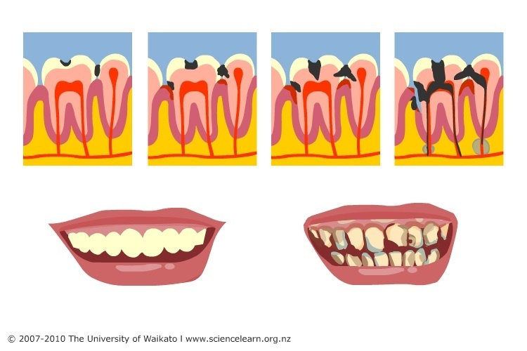 Decay clipart tooth mouth — tooth Learning Bone Hub