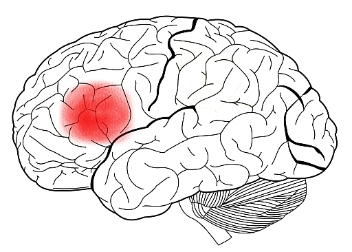Drawn brains blank System and of with Broca's