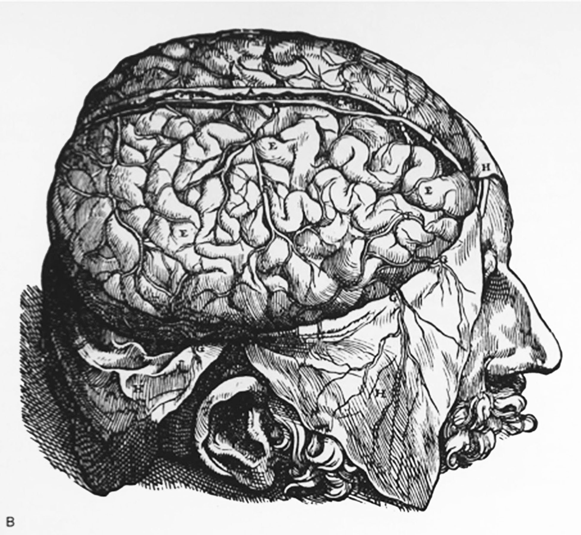 Drawn brains dissection Human dissected brain of Brain