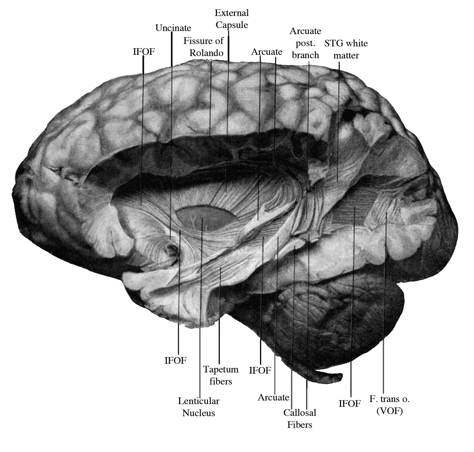 Drawn brains dissection  old drawing pathway Camera