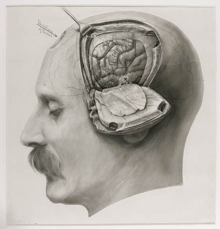 Drawn brains dr frankenstein And Explore http://observatoryroom Brain more!