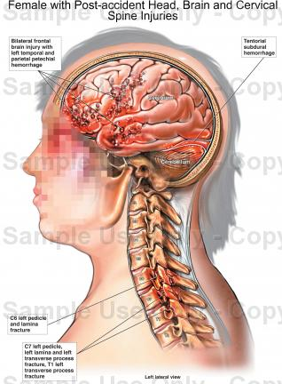 Drawn brains neck anatomy  Female and Cervical Spine