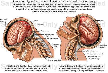 Drawn brains neck anatomy Hyperextension Cervical and Injury Injury