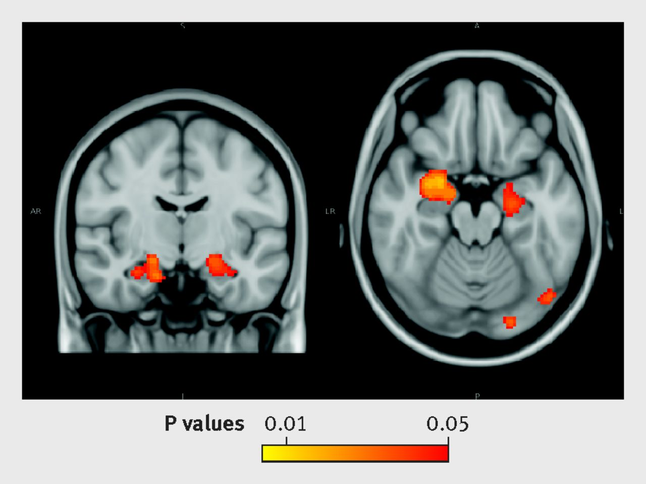 Drawn brains normal For Moderate  factor alcohol