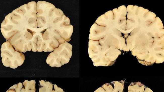 Drawn brains normal After study are drawn CTE