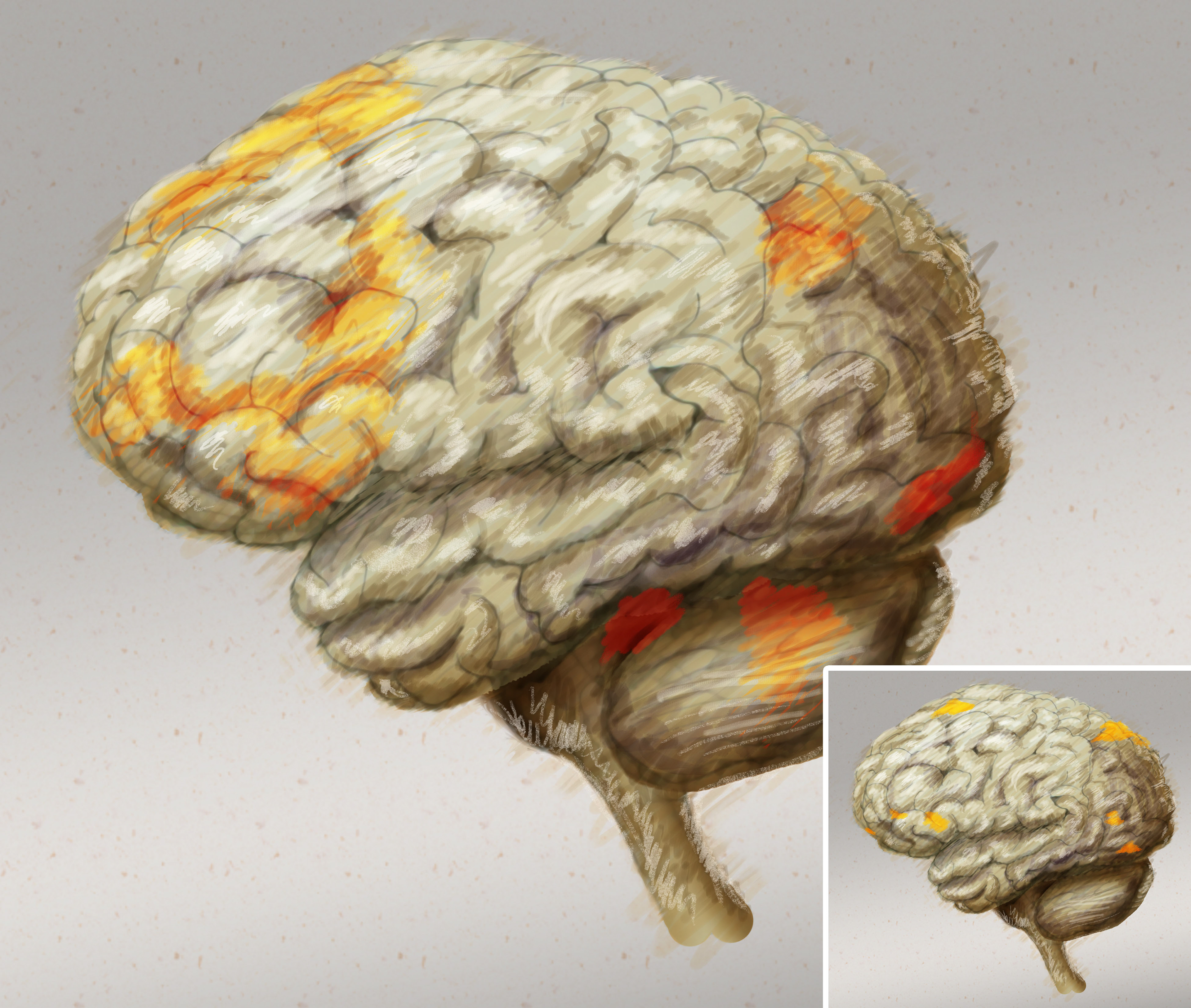 Drawn brains normal R tasks normal certain undergoing