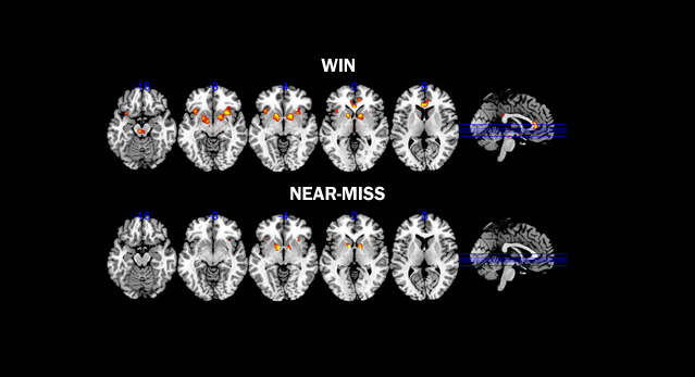 Drawn brains normal Org activity and a scans
