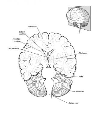 Drawn brain smart Overview Anatomy: Brain Gross Gross