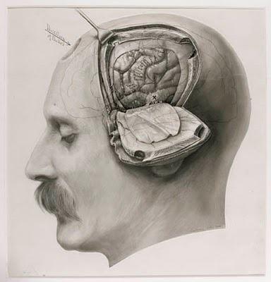 Drawn brains surgical  diagram Search brain surgery