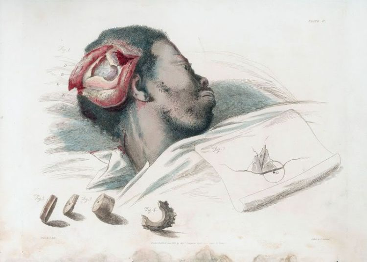 Drawn brains surgical Costandi An of from Illustrations