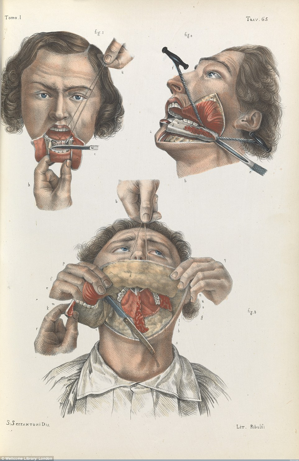 Drawn brains surgical Of the lower from 1841