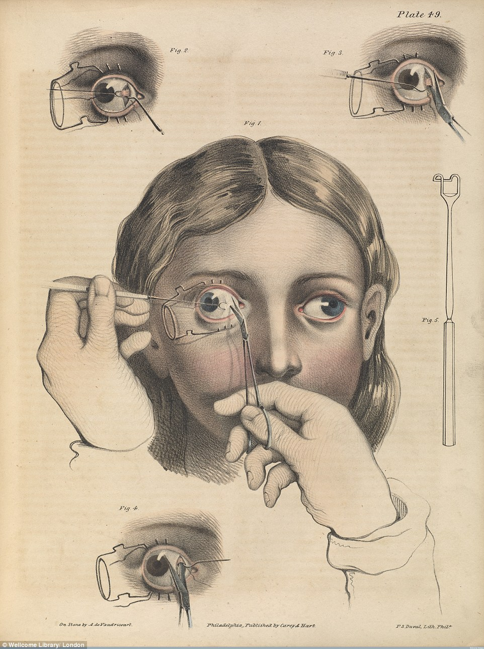 Drawn brains surgical  nature Wellcome Picture an