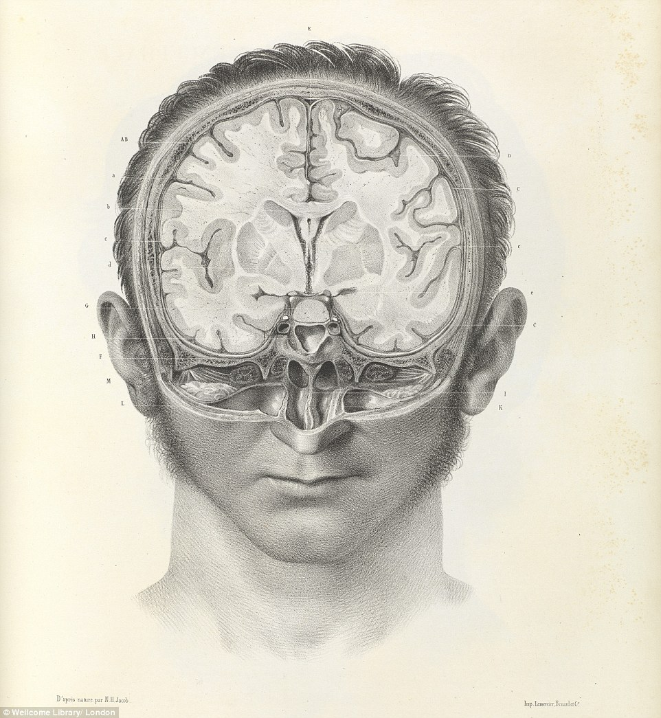 Drawn brains surgical 19th barbaric The 1844 shows