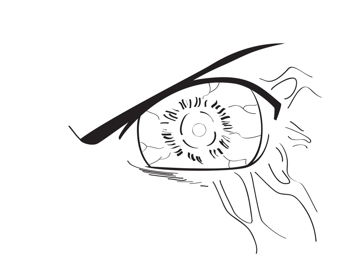 Drawn eyeball vein Draw to (with  Pictures)