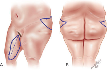 Drawn finger thigh Diagram obese Figure showing the