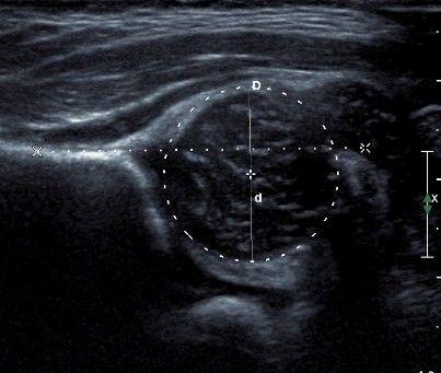 Drawn head hip Hips calculate head to neonatal